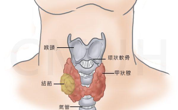 【疾病解读】白藜芦醇 — 诱导甲状腺肿瘤凋亡,常见病不再常见