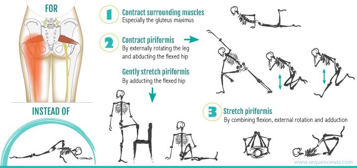 臀部疼痛三类型,而你可以做什麽?