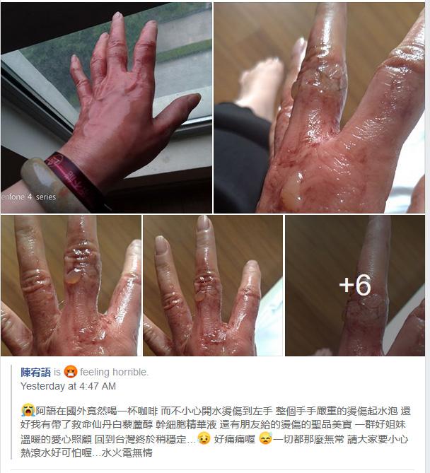 FB上伙伴的分享 — 烫伤